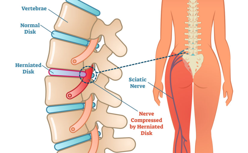 BPS 11: 7 Common Causes of Sciatic Nerve Pain